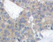 NBP1-19833 - Paxillin /  PXN