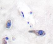 NBP1-19897 - MARCKS