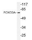 NBP1-20018 - FOXO3 / FKHRL1