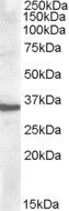 NBP1-20882 - Apolipoprotein F / Apo F