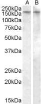 NBP1-20893 - Vasopressin V1b receptor (V1bR)