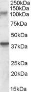 NBP1-20930 - GRIK3 / GLUR7