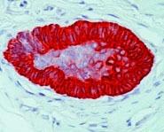 NBP1-22758 - Cytokeratin 15