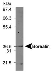 NBP1-22832 - CDCA8 / Borealin