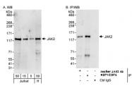 NBP1-22975 - Tyrosine-protein kinase JAK2