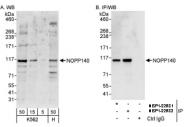 NBP1-22982 - NOLC1