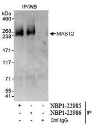 NBP1-22985 - MAST2