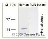 NBP1-25970 - PR3 / C-ANCA