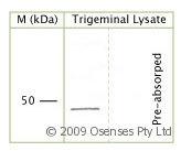 NBP1-25971 - CD271 / NGFR