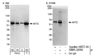 NBP1-26594 - AKT2 / PKB beta