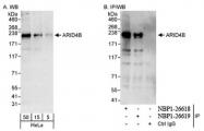 NBP1-26618 - ARID4B / BRCAA1