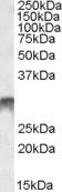 NBP1-28911 - DLX5