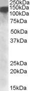 NBP1-28915 - DHX9