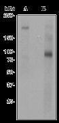 NBP1-44411 - Nibrin