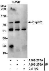 NBP1-28682 - NCAPH2