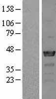NBL1-13512 - NCK2 Lysate