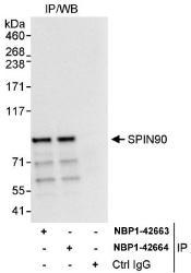 NBP1-42663 - NCKIPSD