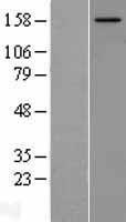 NBL1-13516 - NCOA2 Lysate