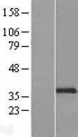 NBL1-13519 - NCR1 Lysate