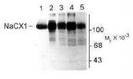 NB300-127 - SLC8A1 /  NCX1