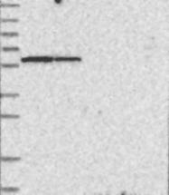 NBP1-88790 - NDOR1