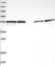 NBP1-87872 - CALCOCO2