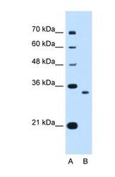 NBP1-55431 - NDRG2