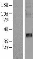 NBL1-13535 - NDUFA10 Lysate
