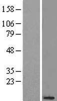 NBL1-13551 - NDUFB3 Lysate