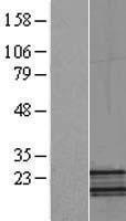 NBL1-13553 - NDUFB5 Lysate