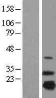 NBL1-13555 - NDUFB7 Lysate