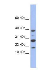 NBP1-54760 - NDUFC1