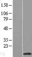 NBL1-13558 - NDUFC1 Lysate