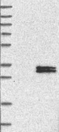 NBP1-85619 - Complex I subunit NDUFS3