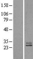 NBL1-13562 - NDUFS3 Lysate