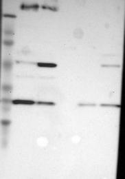 NBP1-84475 - NDUFV2