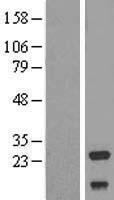 NBL1-13567 - NDUFV2 Lysate