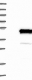 NBP1-84005 - NECAB1