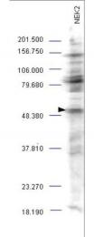 NBP1-78022 - PLK1