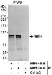 NBP1-42686 - NEK4