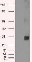 NBP1-47865 - NEK6