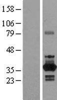 NBL1-13586 - NEK6 Lysate
