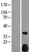NBL1-13587 - NEK7 Lysate