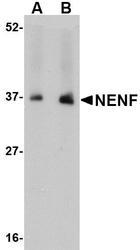NBP1-77331 - Neudesin