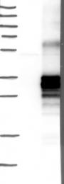 NBP1-84424 - NFAM1