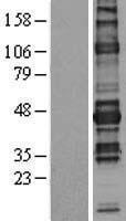 NBL1-13608 - NFAT2 Lysate