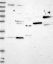 NBP1-81604 - NFKBID / IKBNS