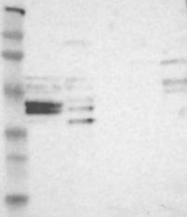 NBP1-83115 - NFKBIL1