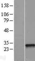 NBL1-13629 - NFYB Lysate