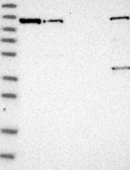 NBP1-87759 - NFKB2 / NF-kappa-B p100/p52